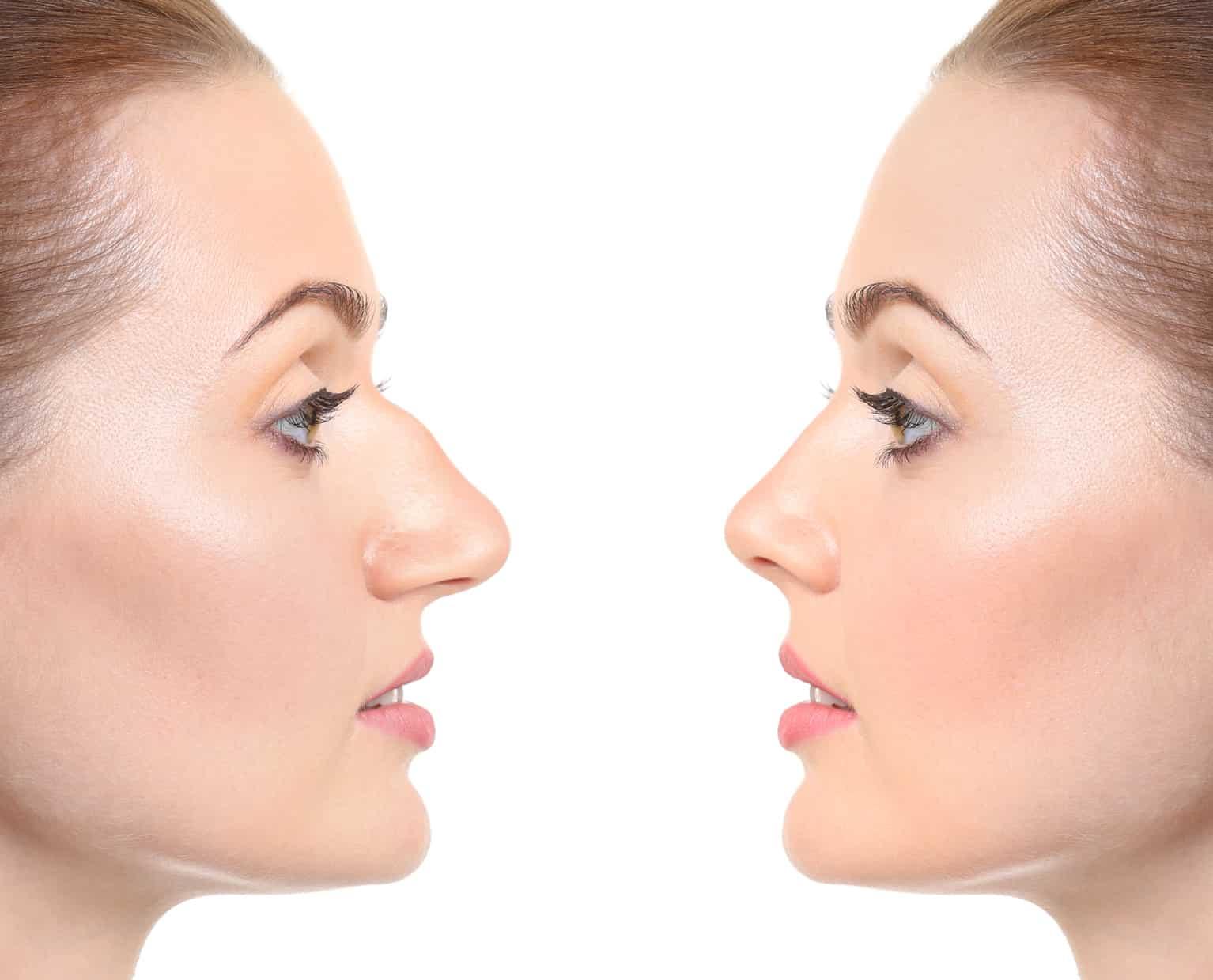 Was Sie unbedingt bei einer Nasen OP beachten sollten